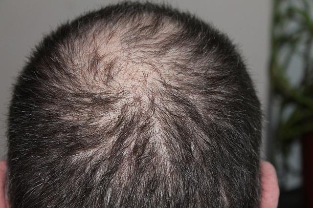 un homme perd ses cheveux