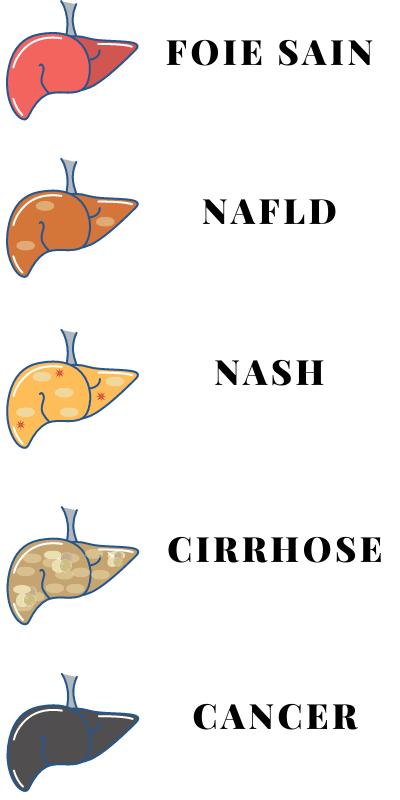 Schéma progression maladie du foie gras